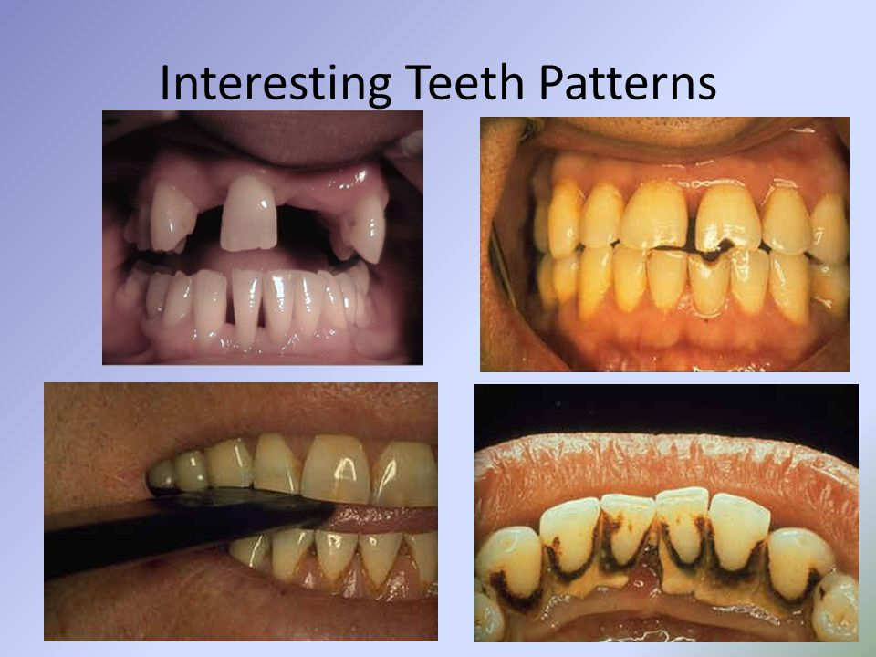 Interesting Teeth Patterns
