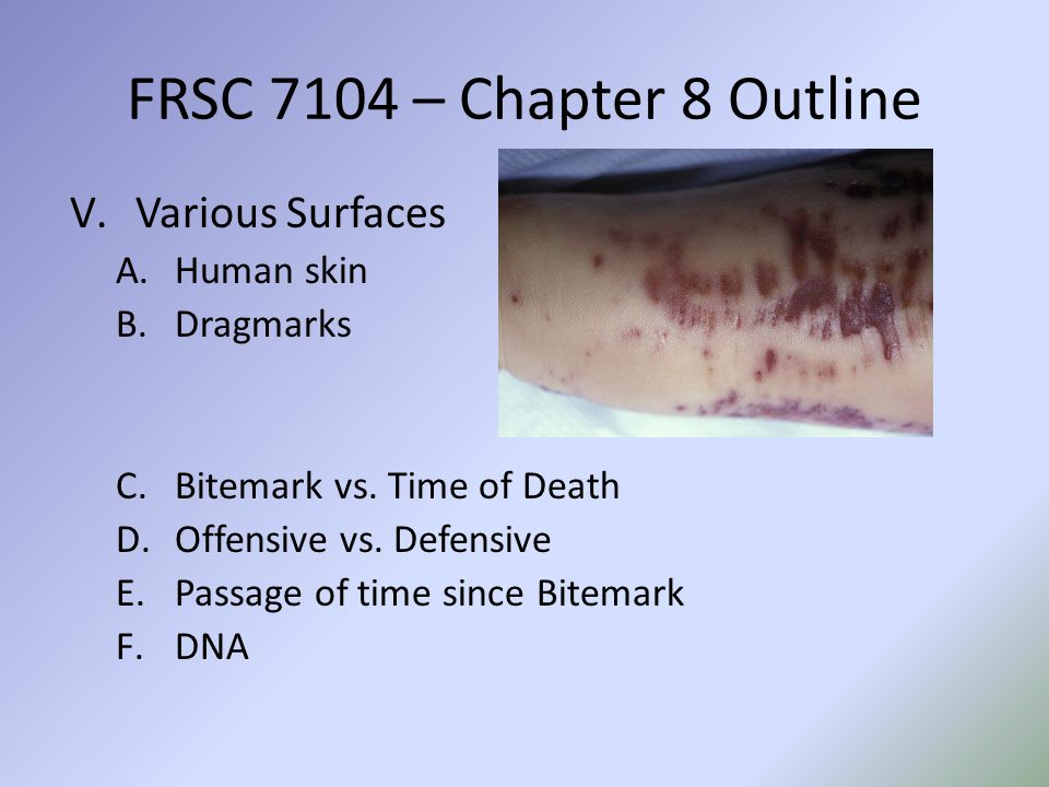 FRSC 7104 – Chapter 8 Outline Various Surfaces Human skin Dragmarks