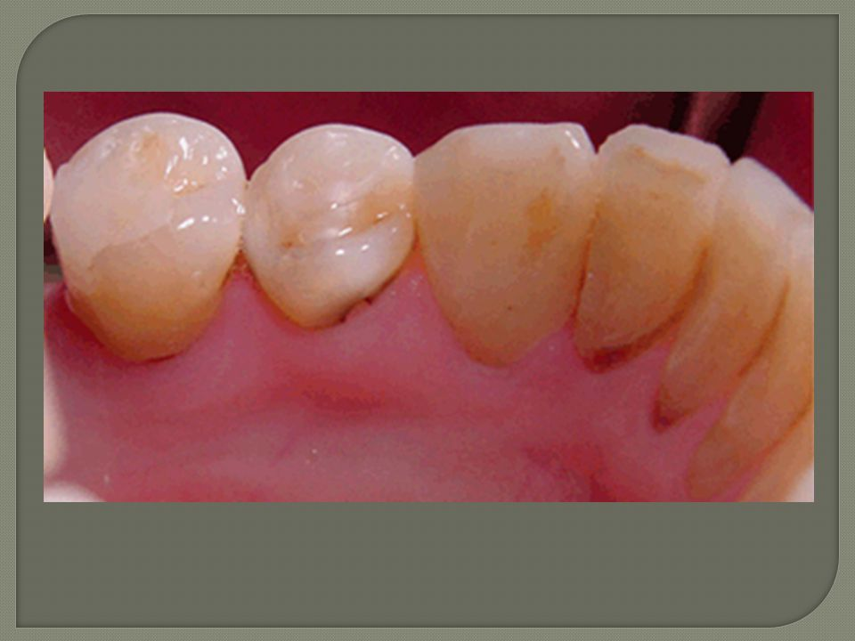 Lingual (oral) aspects of L lower teeth showing carious cavitated lesions 31, 32, 33
