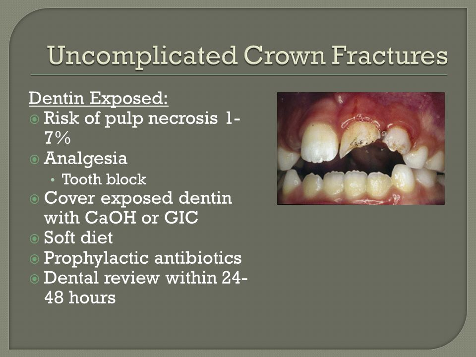 Uncomplicated Crown Fractures