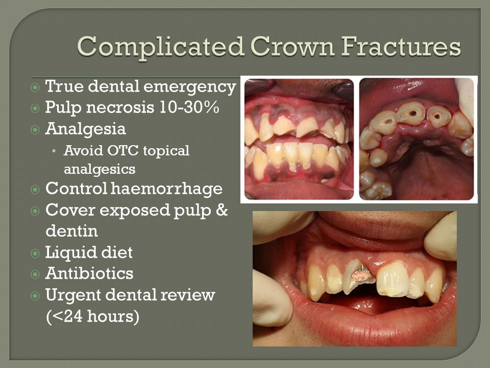 Complicated Crown Fractures