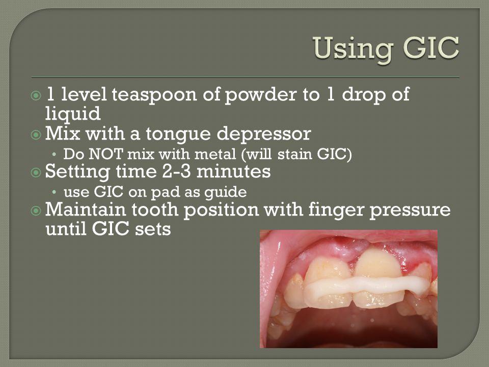 Using GIC 1 level teaspoon of powder to 1 drop of liquid