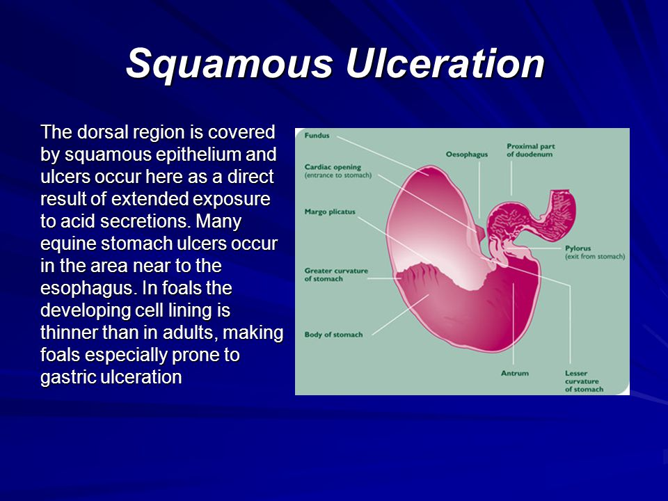 Squamous Ulceration
