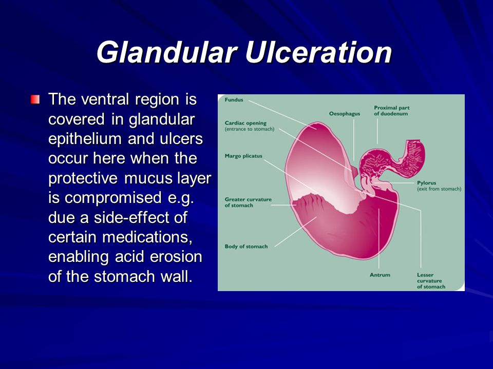 Glandular Ulceration