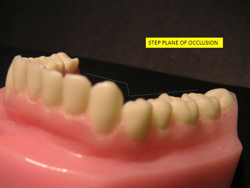 STEP PLANE OF OCCLUSION