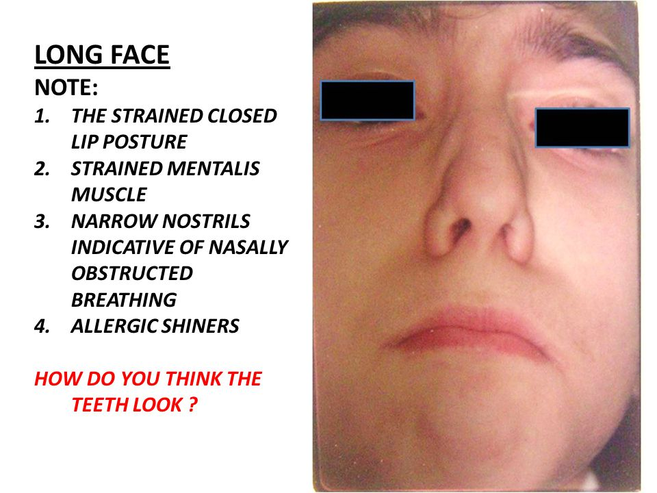 LONG FACE NOTE: THE STRAINED CLOSED LIP POSTURE