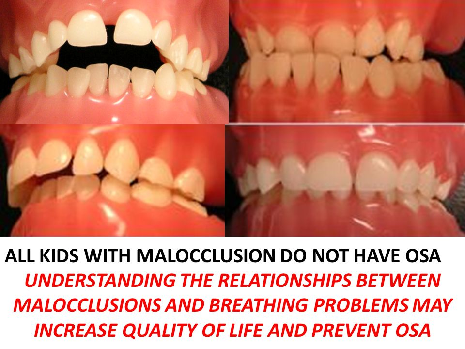 ALL KIDS WITH MALOCCLUSION DO NOT HAVE OSA