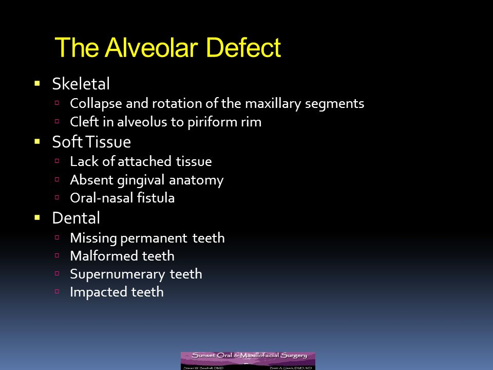 The Alveolar Defect Skeletal Soft Tissue Dental