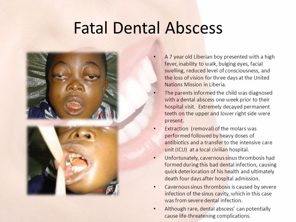 Fatal Dental Abscess