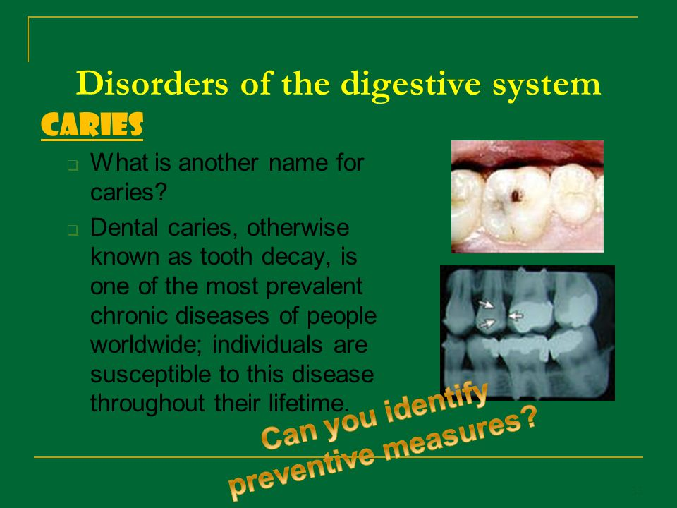 Disorders of the digestive system