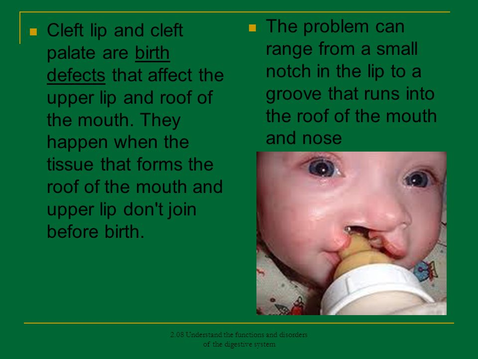 2.08 Understand the functions and disorders of the digestive system