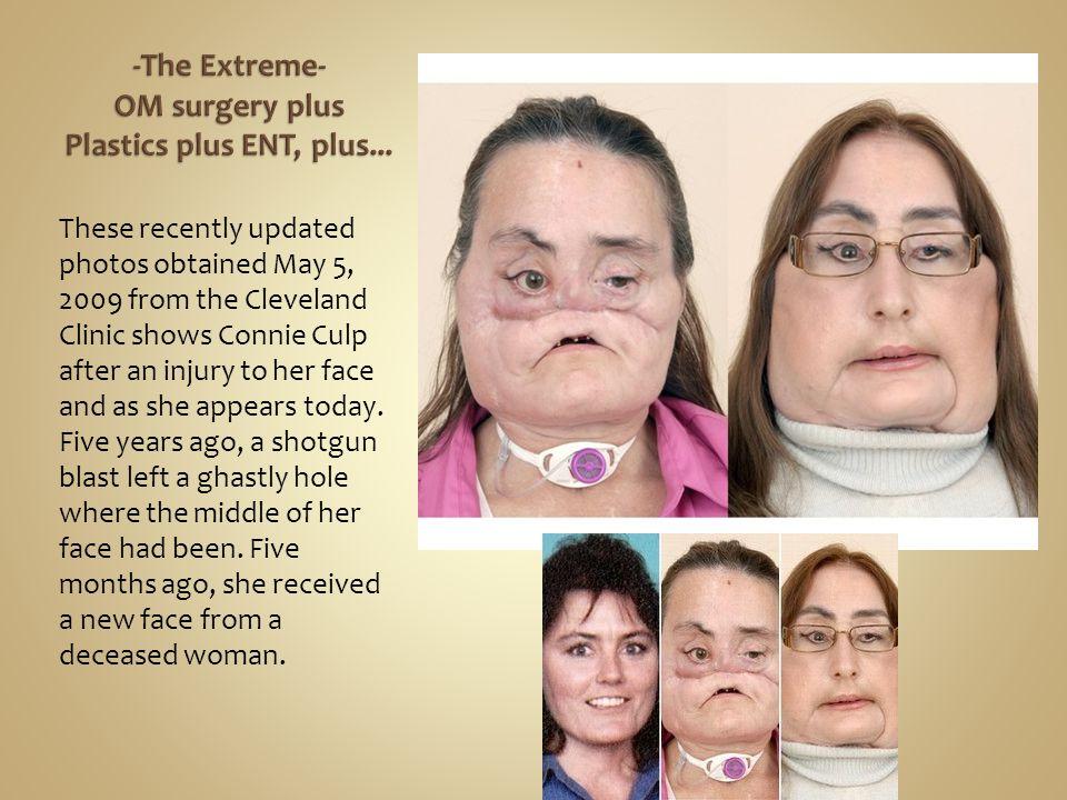 -The Extreme- OM surgery plus Plastics plus ENT, plus...