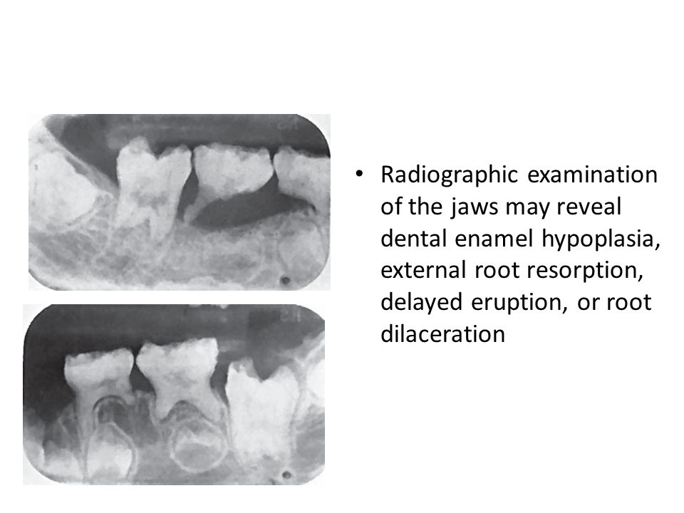 Radiographic examination of the jaws may reveal dental enamel hypoplasia, external root resorption, delayed eruption, or root dilaceration