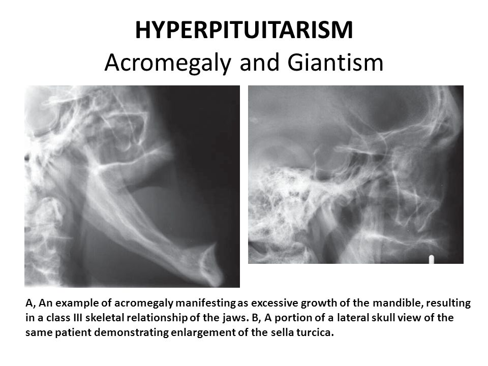 HYPERPITUITARISM Acromegaly and Giantism