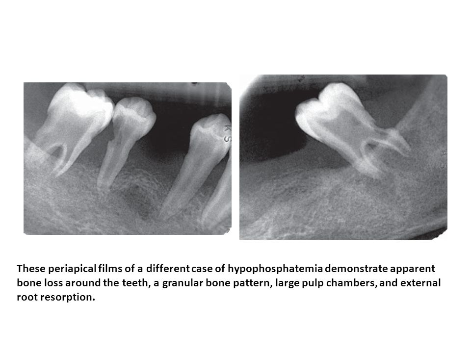 These periapical films of a different case of hypophosphatemia demonstrate apparent bone loss around the teeth, a granular bone pattern, large pulp chambers, and external root resorption.