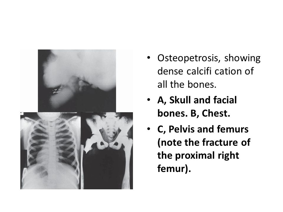 Osteopetrosis, showing dense calcifi cation of all the bones.