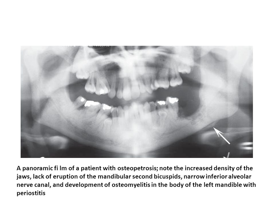 A panoramic fi lm of a patient with osteopetrosis; note the increased density of the