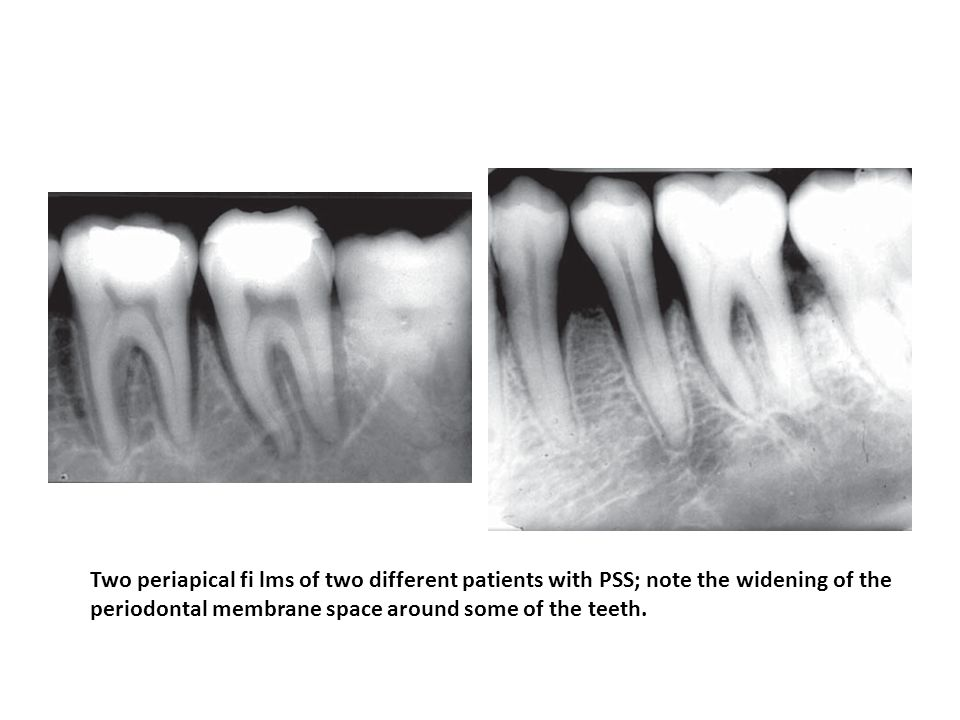 Two periapical fi lms of two different patients with PSS; note the widening of the periodontal membrane space around some of the teeth.