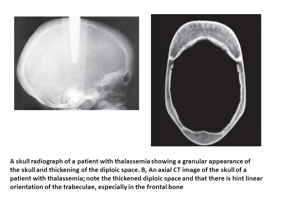 A skull radiograph of a patient with thalassemia showing a granular appearance of