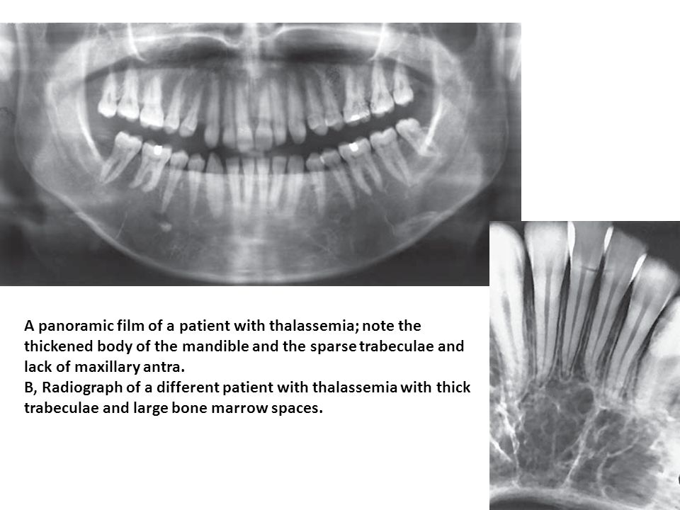 A panoramic film of a patient with thalassemia; note the thickened body of the mandible and the sparse trabeculae and lack of maxillary antra.