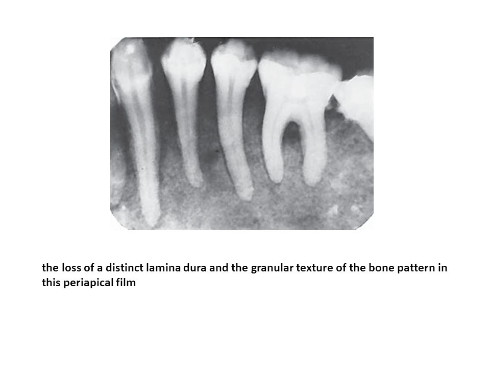 the loss of a distinct lamina dura and the granular texture of the bone pattern in this periapical film