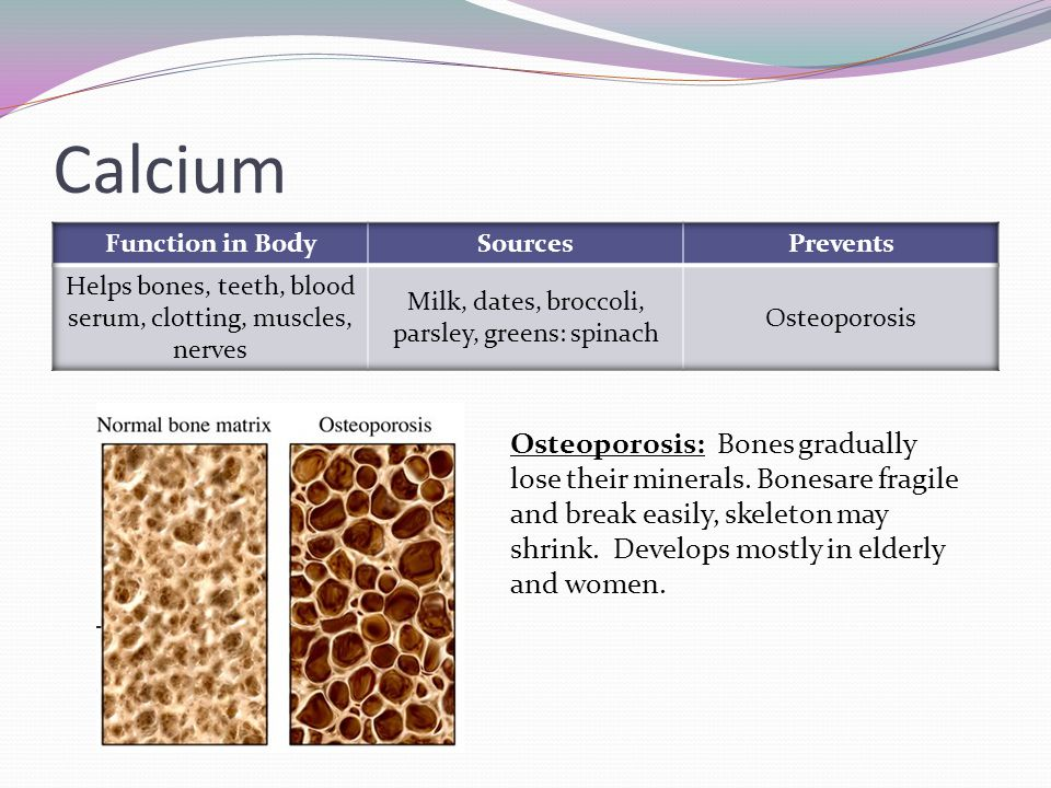 Calcium Function in Body. Sources. Prevents. Helps bones, teeth, blood serum, clotting, muscles, nerves.