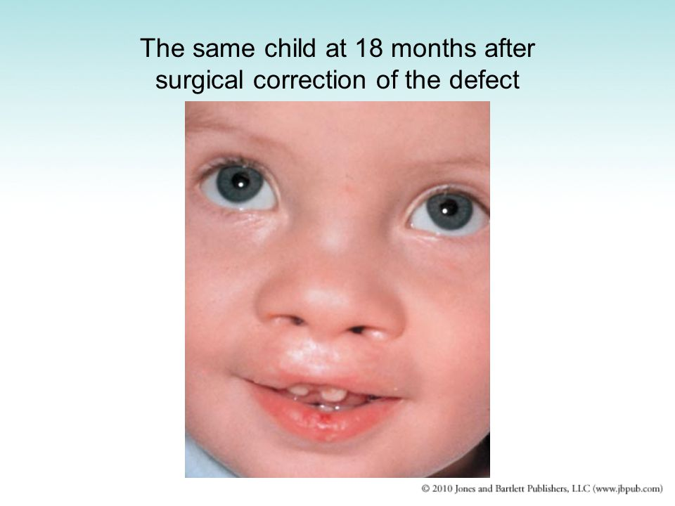 The same child at 18 months after surgical correction of the defect