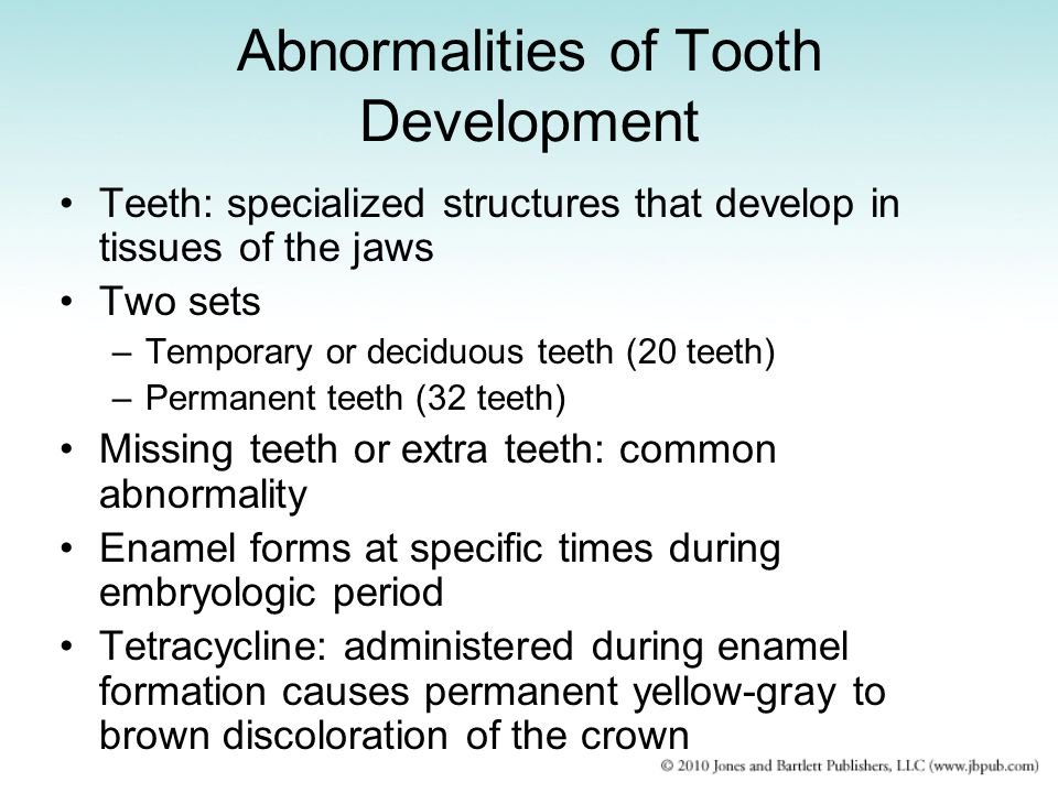 Abnormalities of Tooth Development