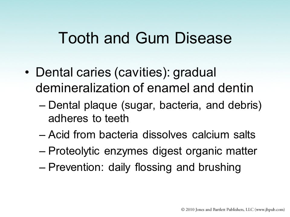 Tooth and Gum Disease Dental caries (cavities): gradual demineralization of enamel and dentin.