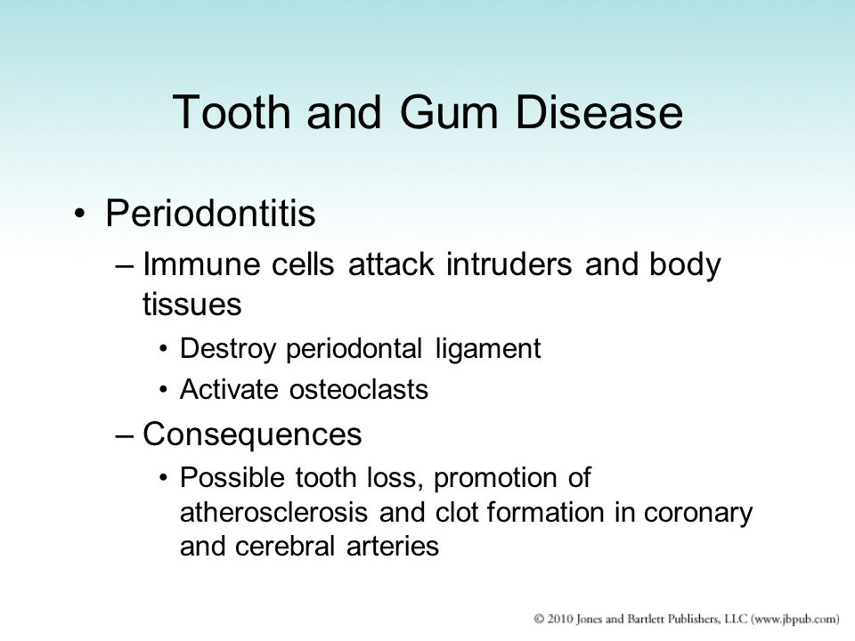 Tooth and Gum Disease Periodontitis