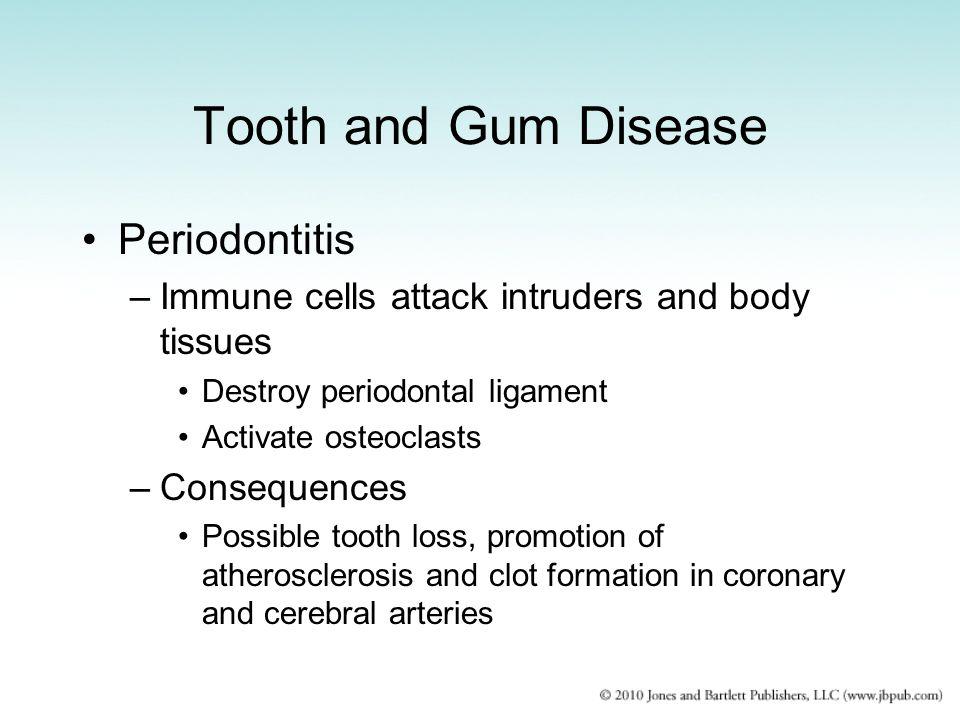 Tooth and Gum Disease Periodontitis