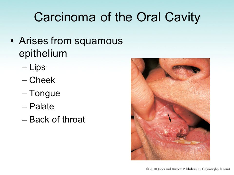 Carcinoma of the Oral Cavity