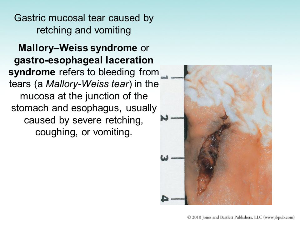 Gastric mucosal tear caused by retching and vomiting