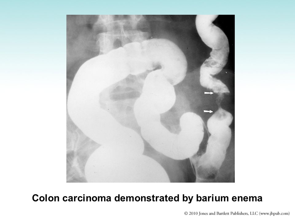 Colon carcinoma demonstrated by barium enema