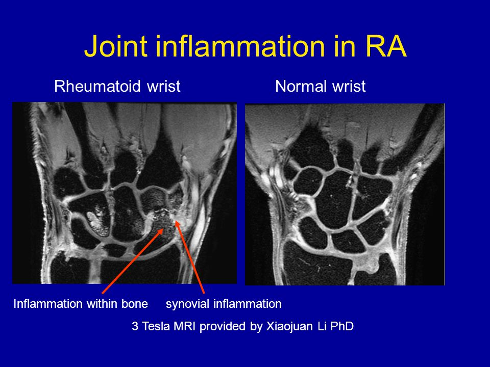 Joint inflammation in RA