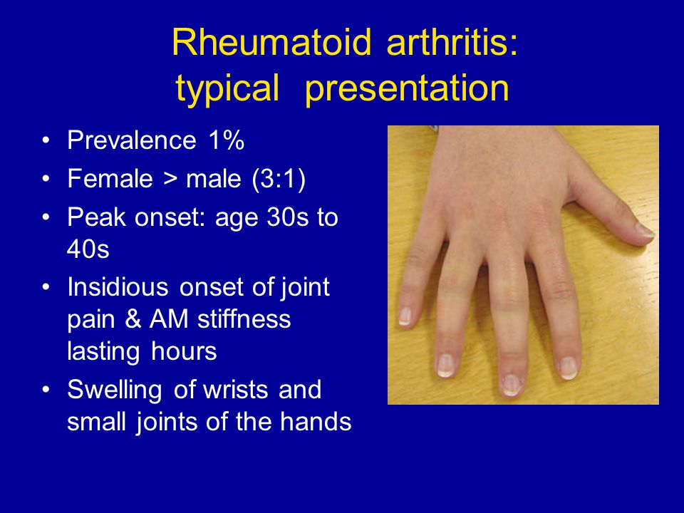 Rheumatoid arthritis: typical presentation