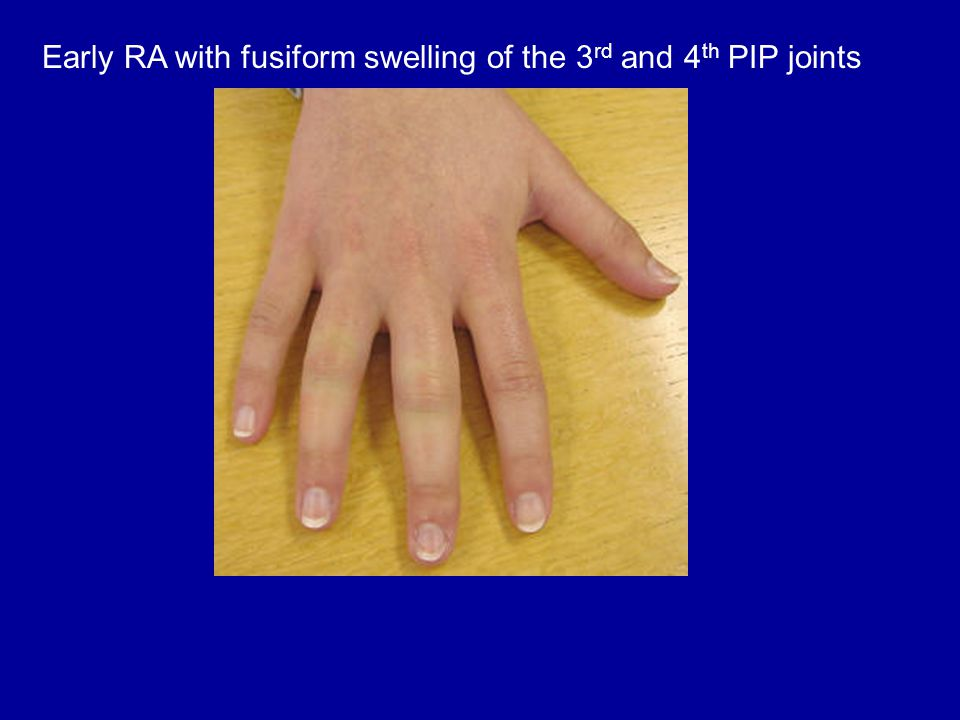 Early RA with fusiform swelling of the 3rd and 4th PIP joints