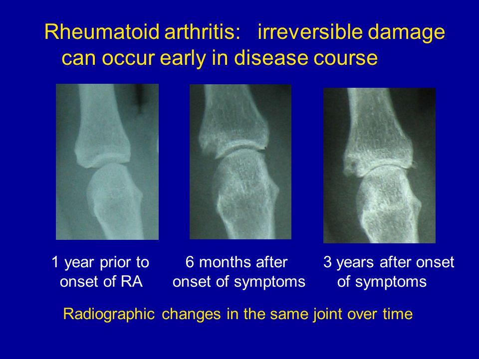Rheumatoid arthritis: irreversible damage