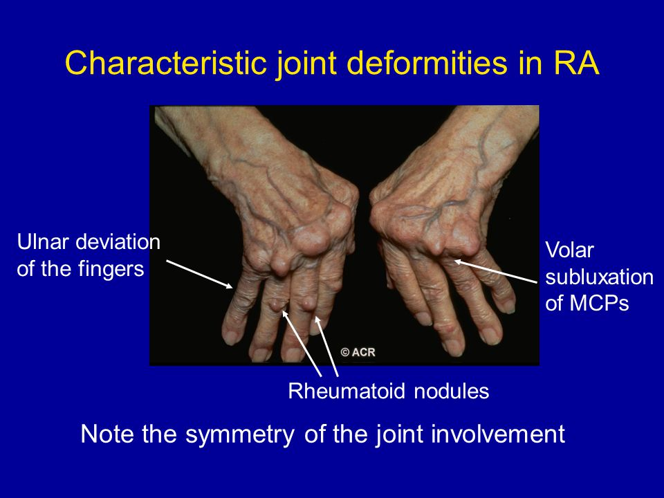 Characteristic joint deformities in RA