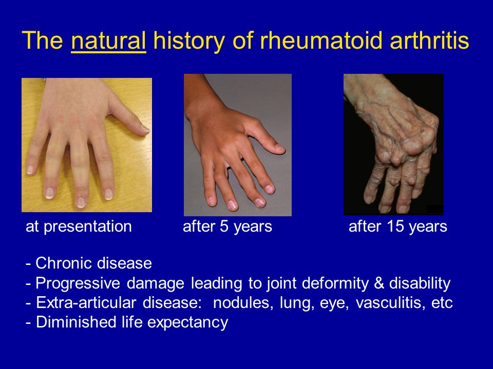 Natural Treatment For Arthritis In Wrists