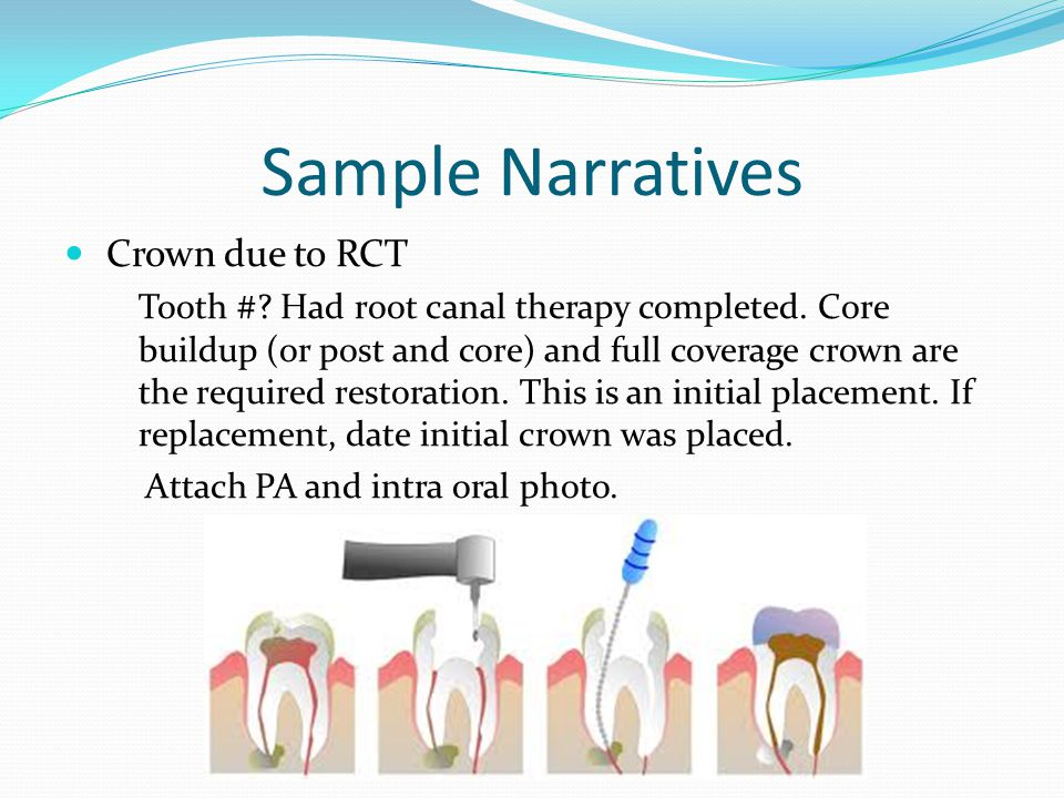 Sample Narratives Crown due to RCT
