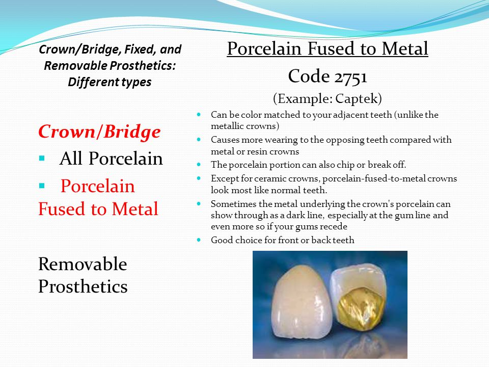 Crown/Bridge, Fixed, and Removable Prosthetics: Different types