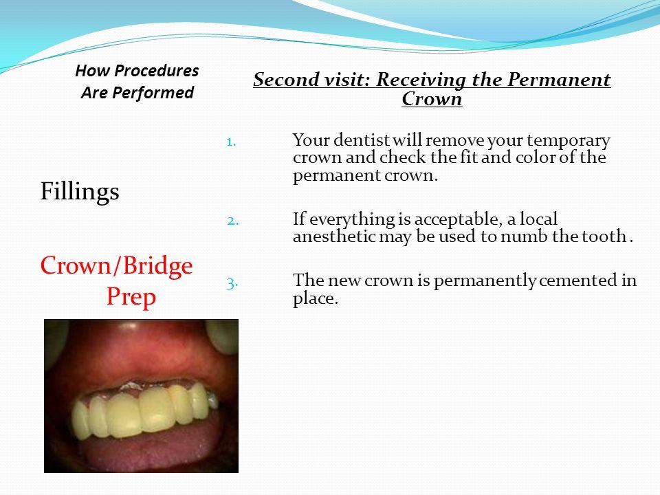 Fillings Crown/Bridge Prep Second visit: Receiving the Permanent Crown