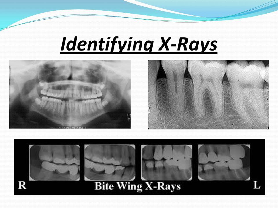 Identifying X-Rays