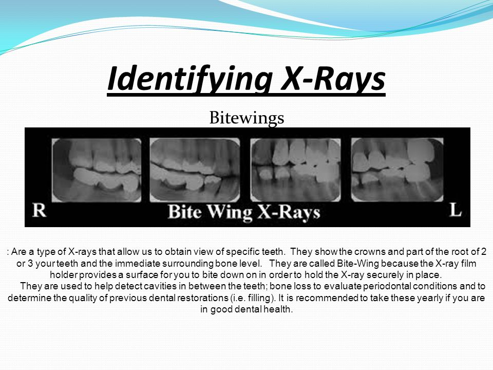 Identifying X-Rays Bitewings