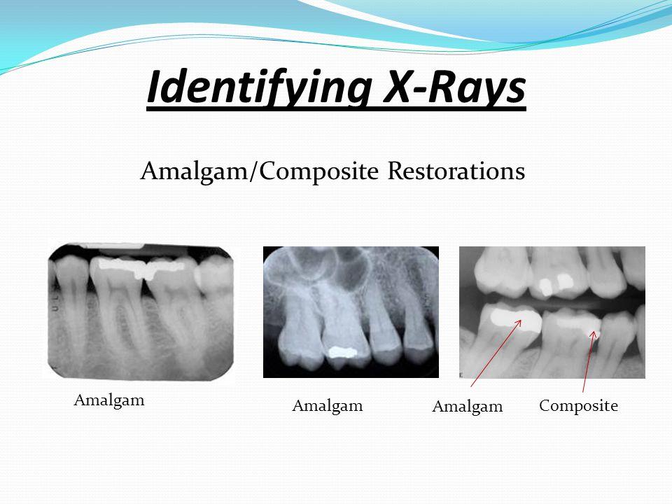 Amalgam/Composite Restorations