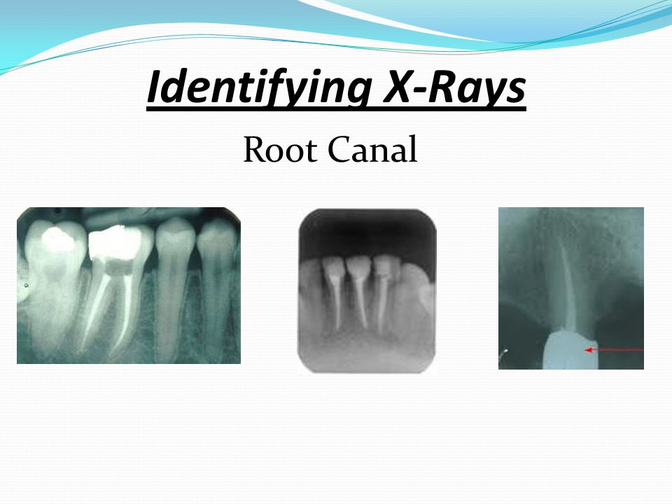 Identifying X-Rays Root Canal