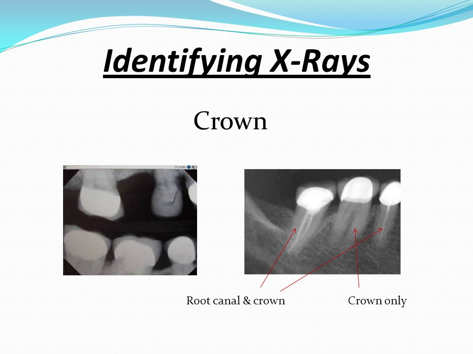 Identifying X-Rays Crown Root canal & crown Crown only