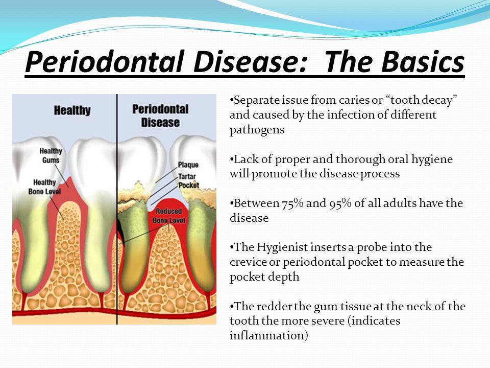 Periodontal Disease: The Basics