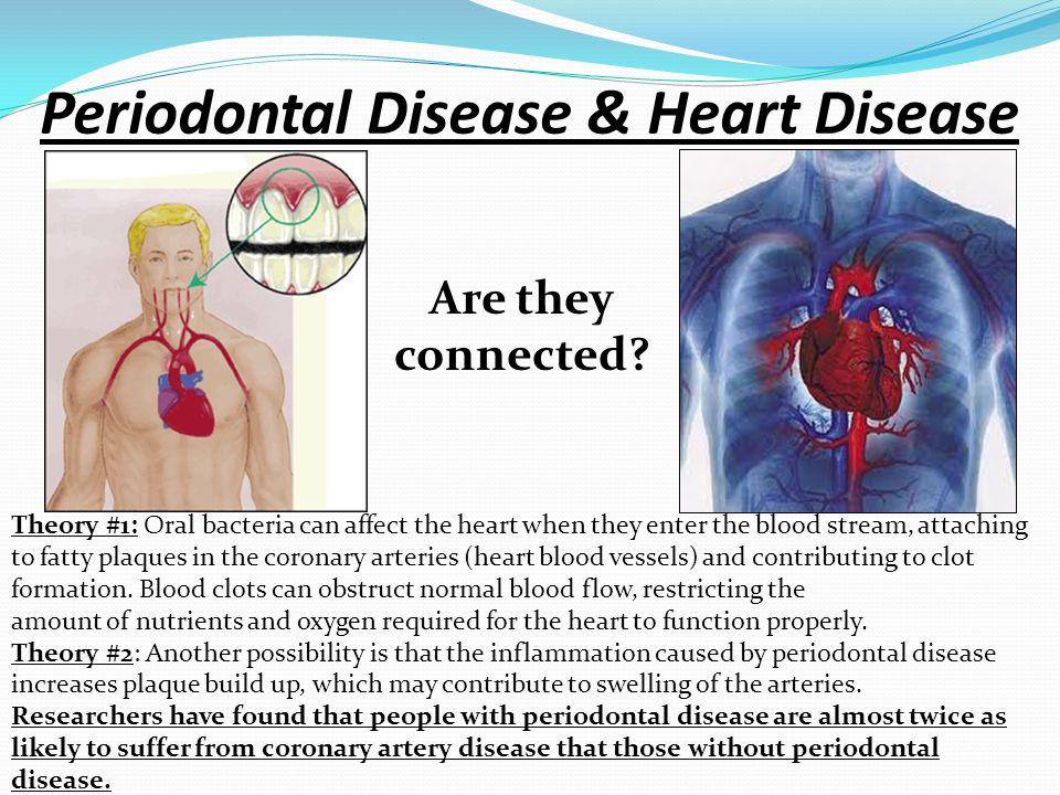 Periodontal Disease & Heart Disease